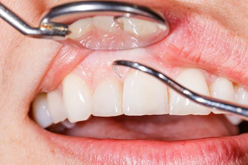 Cosmetic dentist fixing chipped teeth in Vallejo, CA