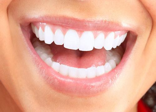 White teeth after teeth white whitening in Vallejo, CA