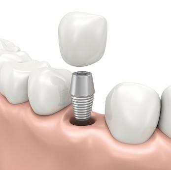 Dental Implants in Vallejo CA