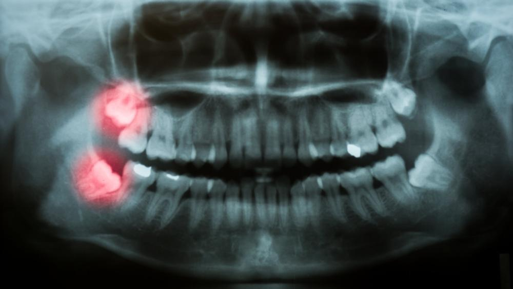 Dental X-ray | Vallejo CA Dentist