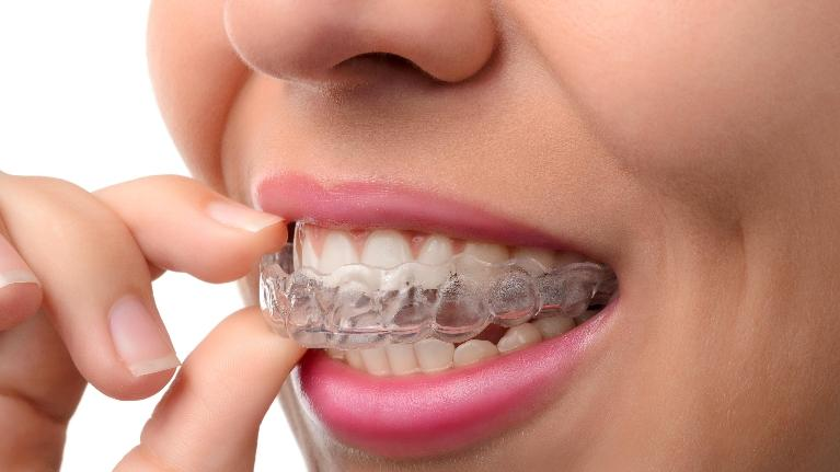 Clear Retainer | Invisalign Vallejo CA