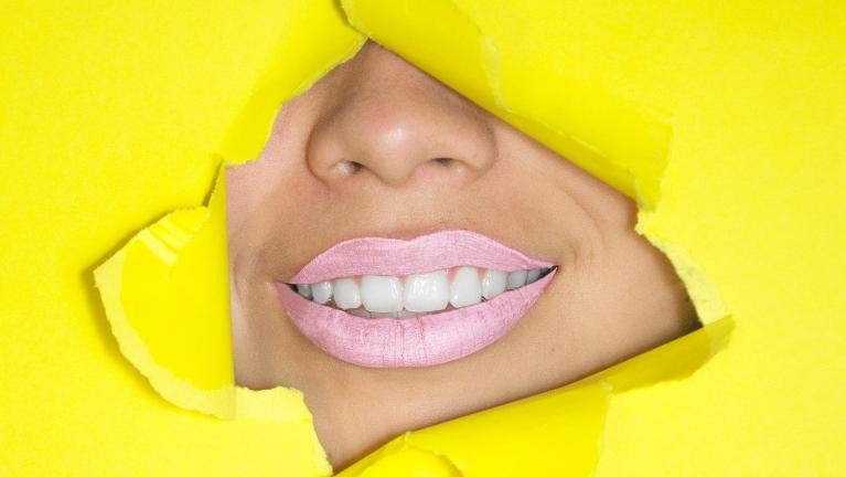 White teeth with dental implants behind yellow paper