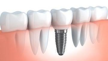 Illustration of dental implant | Vallejo CA Dentist