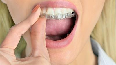 Close up of woman using Invisalign aligner on her teeth
